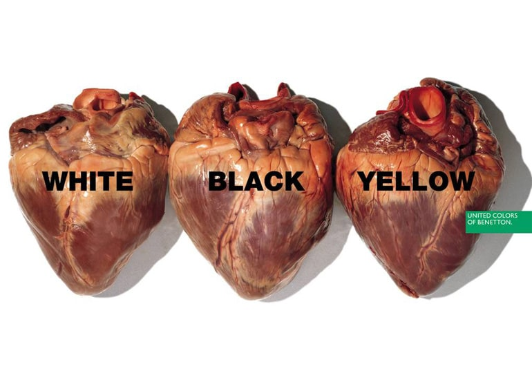 Benetton Ad - White, Black, Yellow Hearts